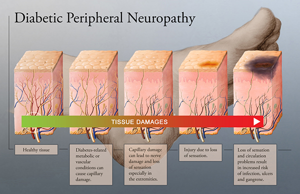Diabetic Peripheral Neuropathy2